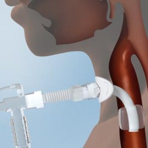3d medical illustration rendering Chicago